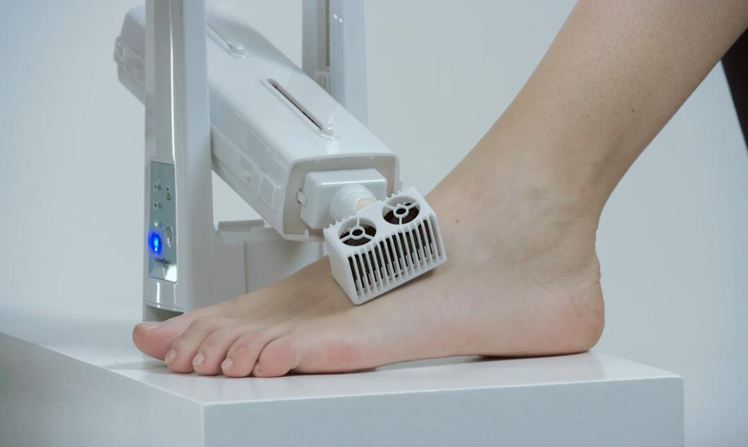 Revisa tus pies con la tecnología NerveCheck en el Diabetes Experience Day