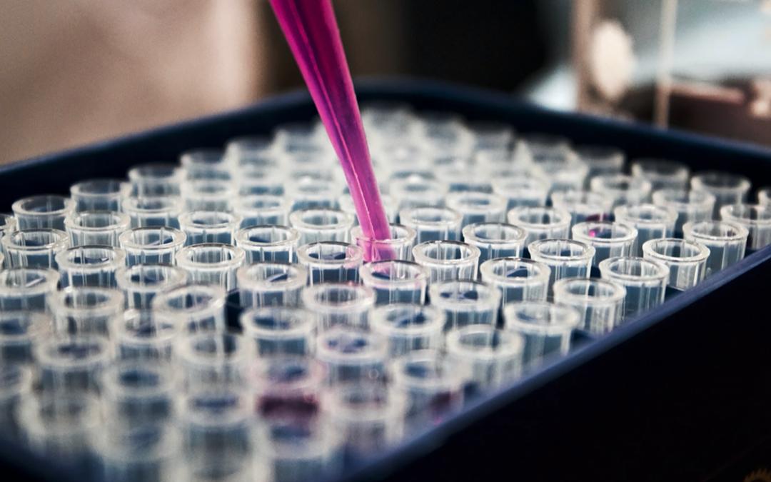 Manda tus preguntas a los investigadores en diabetes